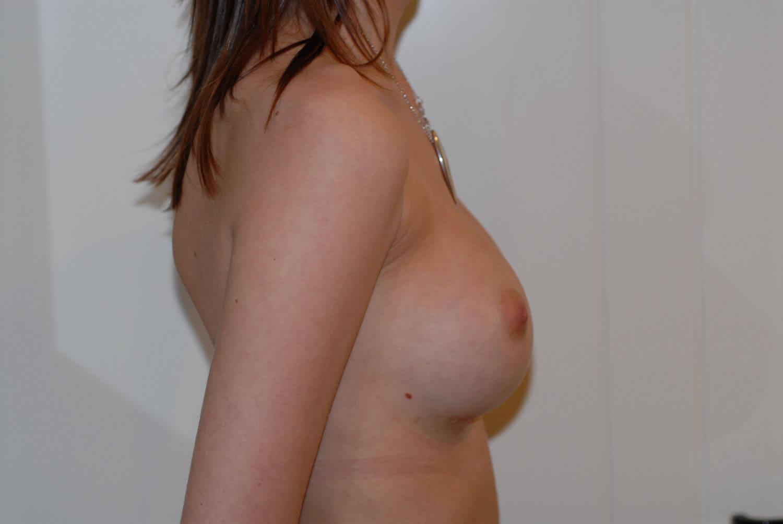 After-Profil