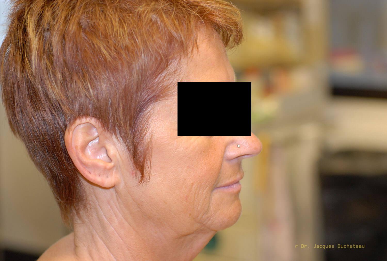 Before-Profil
