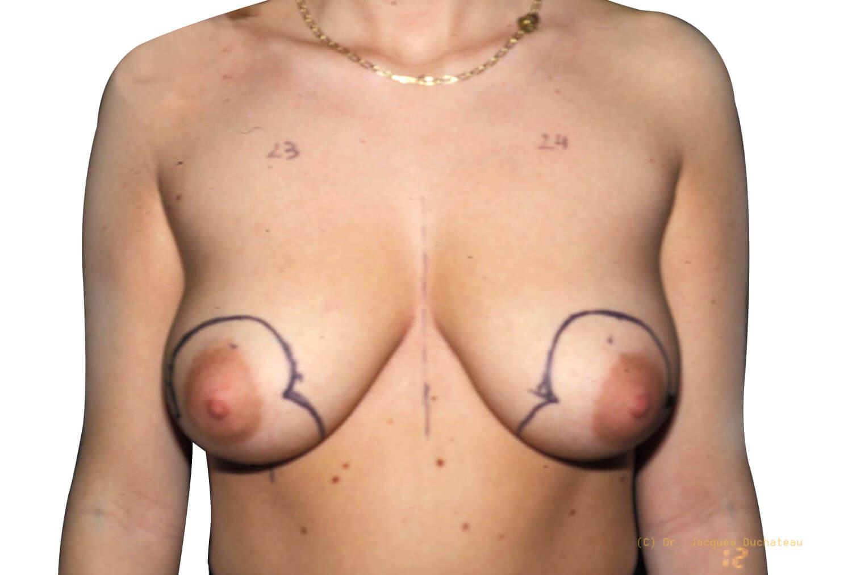 Before-Remontée des seins Face
