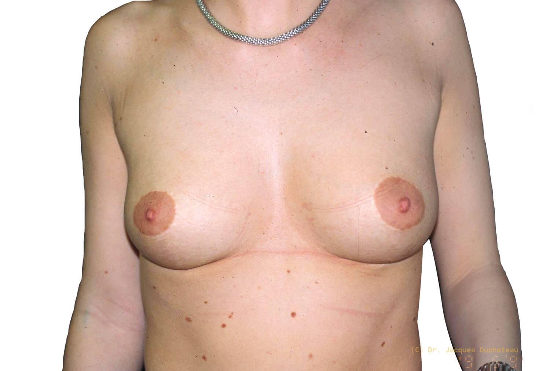 After-Remontée des seins Face