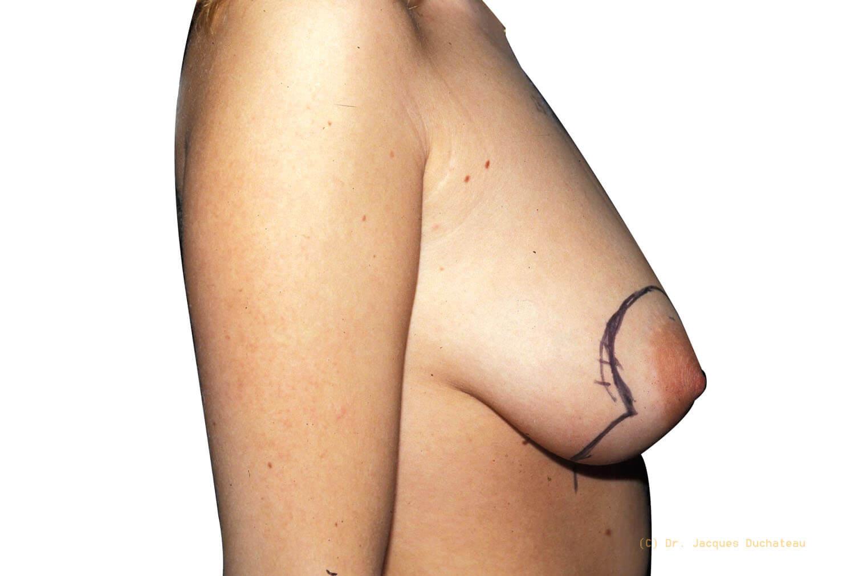 Before-Remontée des seins profil