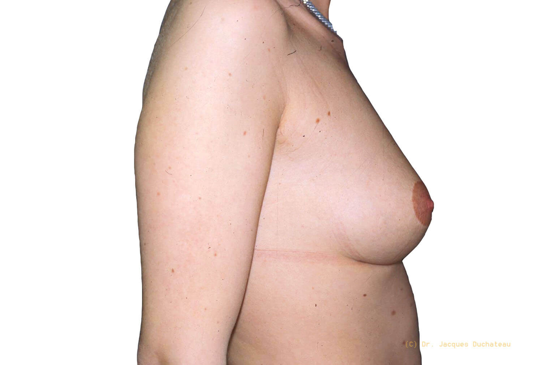 After-Remontée des seins profil