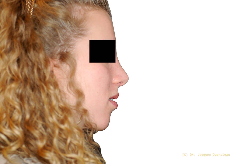 photo-avant-apres-rhinoplastie-exemple-1-2