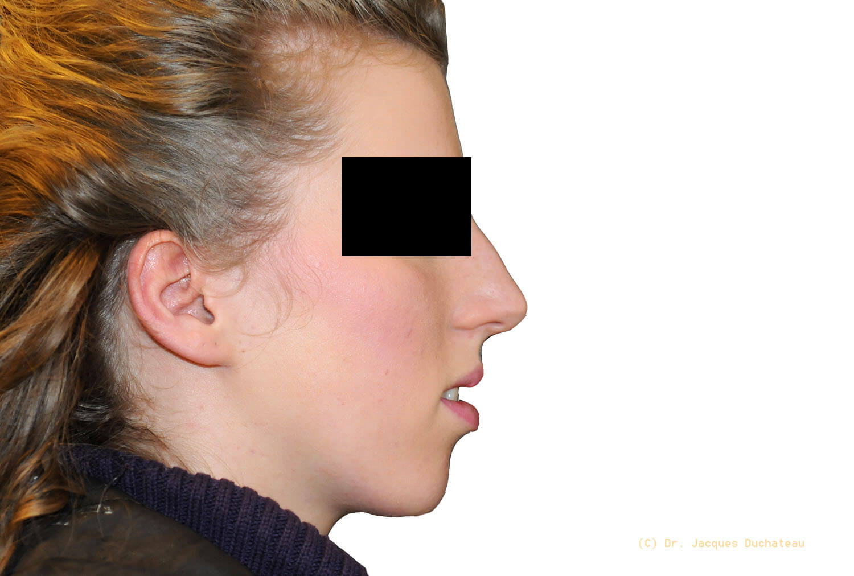photo-avant-apres-rhinoplastie-exemple-1