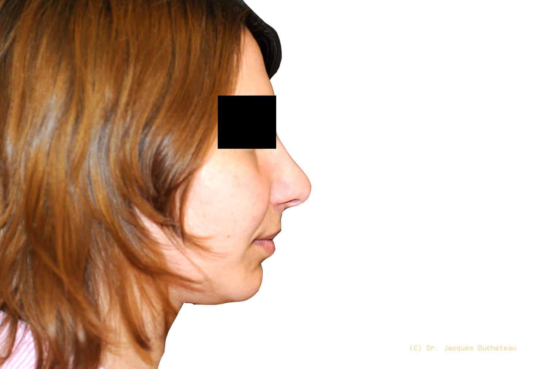 After-Photo rhinoplastie