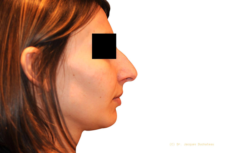 Before-Photo rhinoplastie