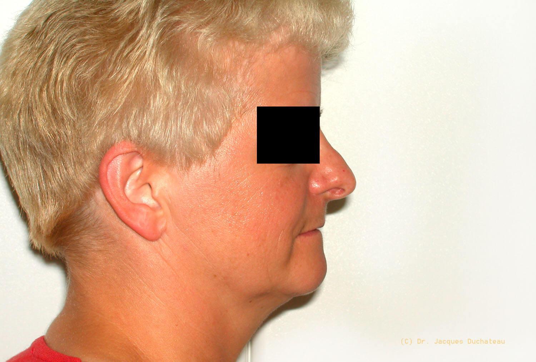 photo-avant-apres-rhinoplastie-exemple-3-2jpg