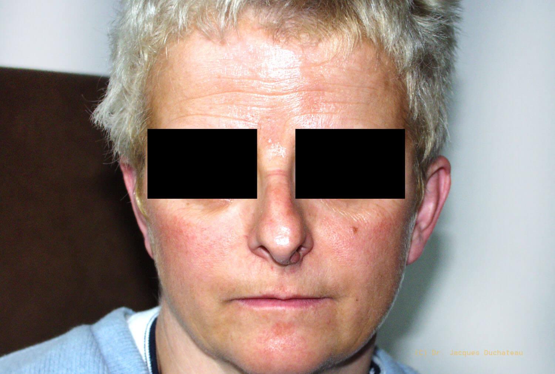 photo-avant-apres-rhinoplastie-exemple-3-3