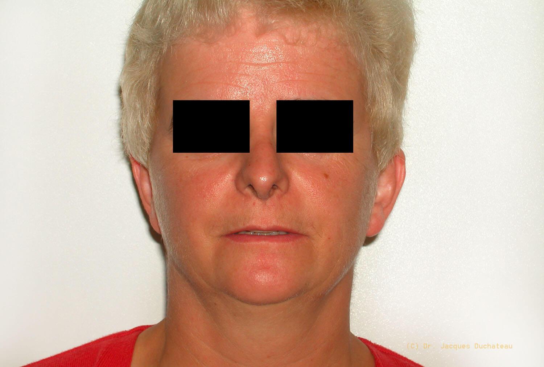 photo-avant-apres-rhinoplastie-exemple-3-4