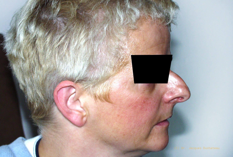 photo-avant-apres-rhinoplastie-exemple-3
