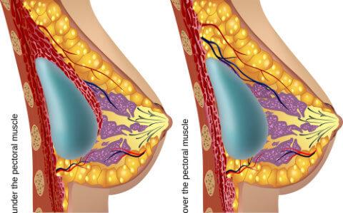 Augmentation mammaire - Ou placer l'implant mammaire