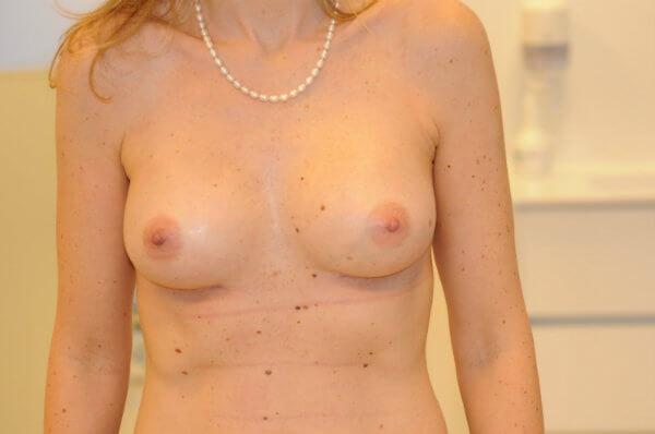 Photo-après-augmentation-mammaire