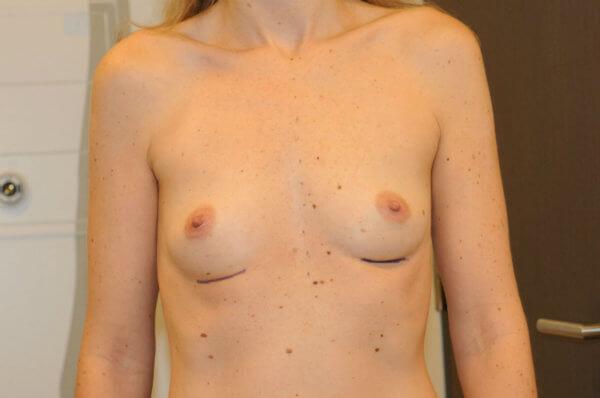 Photo-avant-augmentation-mammaire