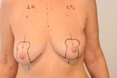 Différence réduction mammaire et mastopexie_1