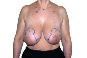 Réduction mammaire en T